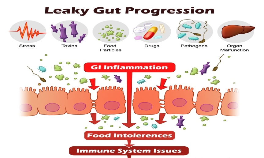Causes-of-Leaky-Gut-Syndrome-Leaky-Gut-Progression